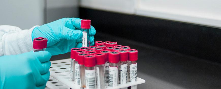nuevos-avances-en-el-estudio-de-la-proteina-tdp-43-y-la-ela