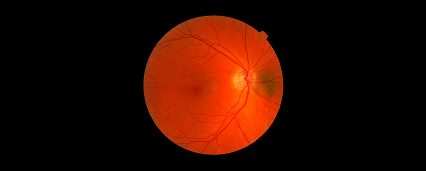 la-importancia-de-la-retina-en-el-diagnostico-precoz-del-alzheimer-y-de-otras-enfermedades-del-sistema-nervioso